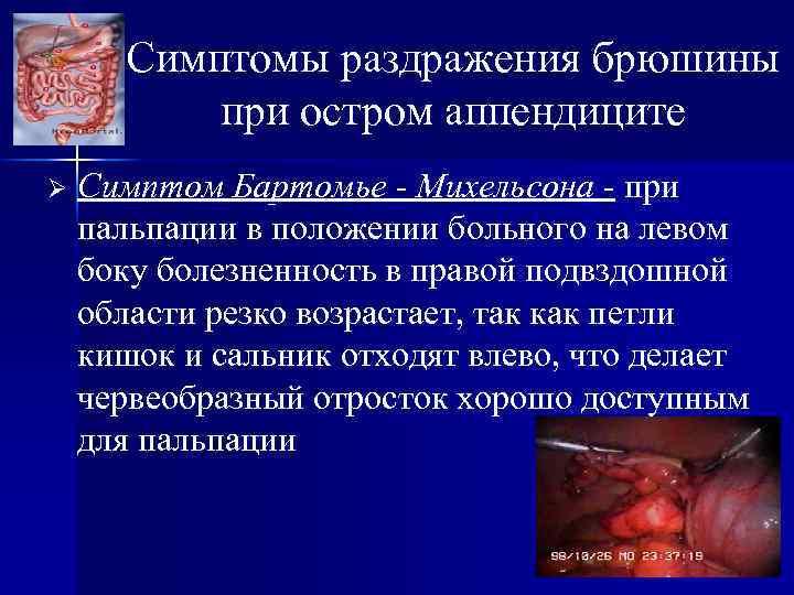 Симптомы раздражения брюшины при остром аппендиците Ø Симптом Бартомье - Михельсона - при пальпации