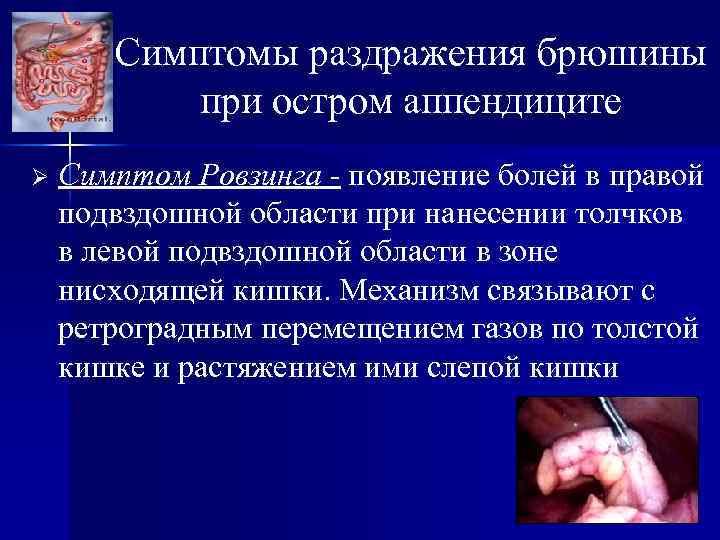Симптомы раздражения брюшины при остром аппендиците Ø Симптом Ровзинга - появление болей в правой