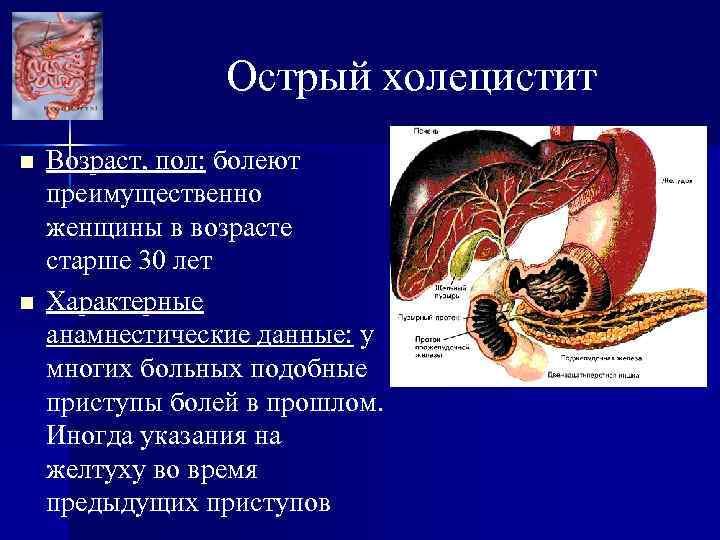Острый холецистит n n Возраст, пол: болеют преимущественно женщины в возрасте старше 30 лет