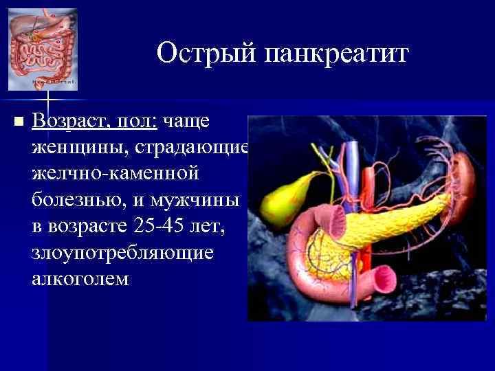 Острый панкреатит n Возраст, пол: чаще женщины, страдающие желчно-каменной болезнью, и мужчины в возрасте