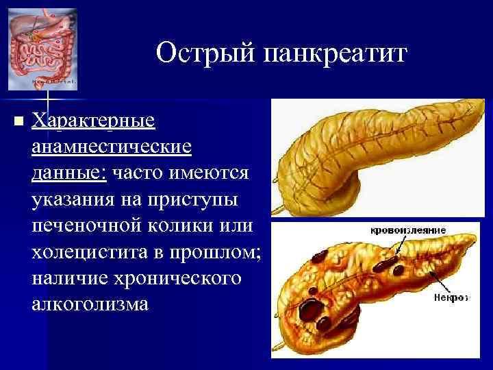 Острый панкреатит n Характерные анамнестические данные: часто имеются указания на приступы печеночной колики или