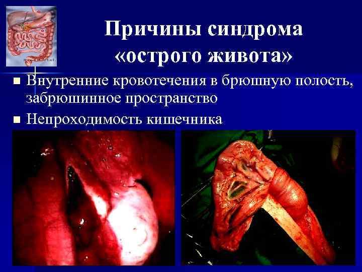 Причины синдрома «острого живота» Внутренние кровотечения в брюшную полость, забрюшинное пространство n Непроходимость кишечника