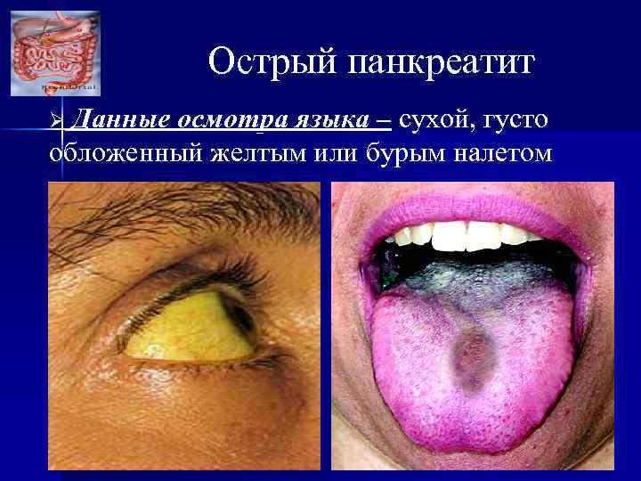 Острый панкреатит Данные осмотра языка – сухой, густо обложенный желтым или бурым налетом Ø