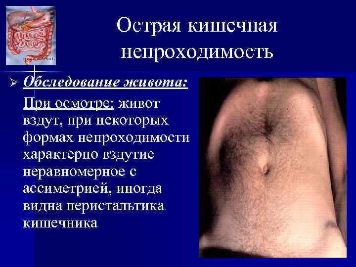 Острая кишечная непроходимость Ø Обследование живота: При осмотре: живот вздут, при некоторых формах непроходимости