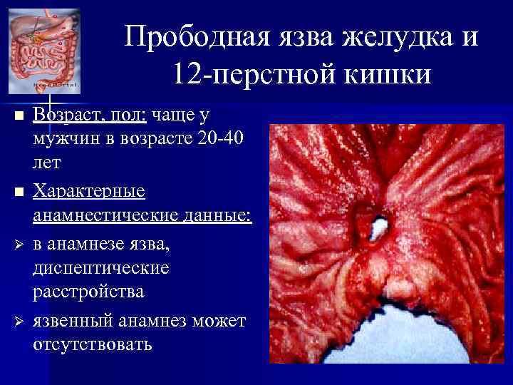 Прободная язва желудка и 12 -перстной кишки n n Ø Ø Возраст, пол: чаще