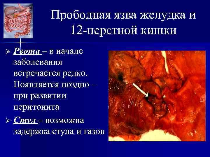 Прободная язва желудка и 12 -перстной кишки Рвота – в начале заболевания встречается редко.