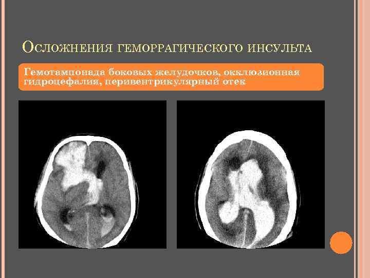 ОСЛОЖНЕНИЯ ГЕМОРРАГИЧЕСКОГО ИНСУЛЬТА Гемотампонада боковых желудочков, окклюзионная гидроцефалия, перивентрикулярный отек