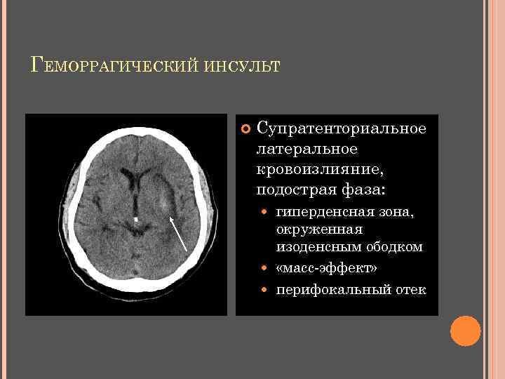 ГЕМОРРАГИЧЕСКИЙ ИНСУЛЬТ Супратенториальное латеральное кровоизлияние, подострая фаза: гиперденсная зона, окруженная изоденсным ободком «масс-эффект» перифокальный