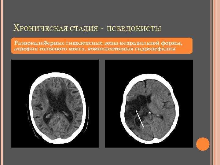 ХРОНИЧЕСКАЯ СТАДИЯ - ПСЕВДОКИСТЫ Разнокалиберные гиподенсные зоны неправильной формы, атрофия головного мозга, компенсаторная гидроцефалия