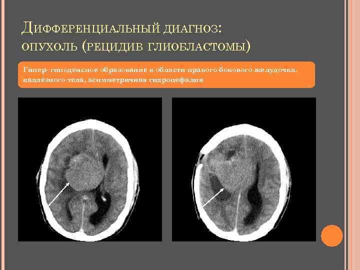 ДИФФЕРЕНЦИАЛЬНЫЙ ДИАГНОЗ: ОПУХОЛЬ (РЕЦИДИВ ГЛИОБЛАСТОМЫ) Гипер- гиподенсное образование в области правого бокового желудочка, каллезного