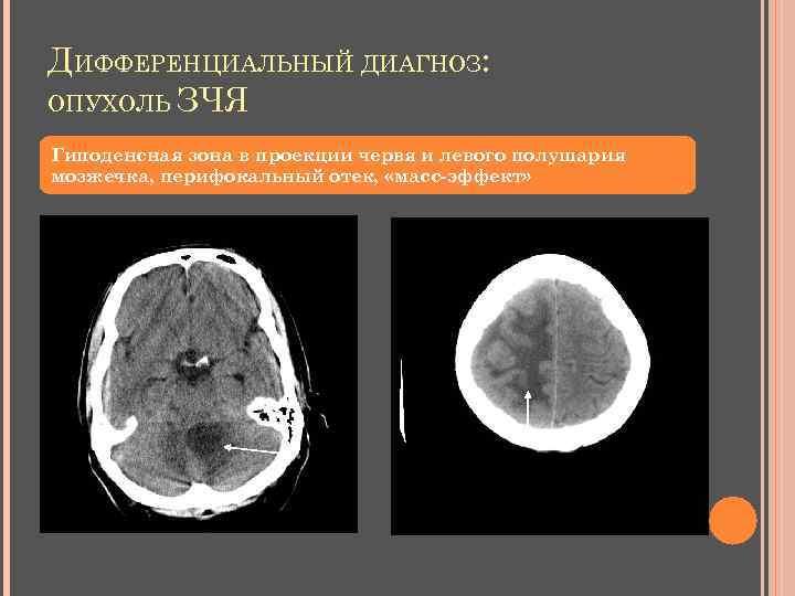 ДИФФЕРЕНЦИАЛЬНЫЙ ДИАГНОЗ: ОПУХОЛЬ ЗЧЯ Гиподенсная зона в проекции червя и левого полушария мозжечка, перифокальный