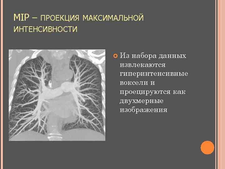 MIP – ПРОЕКЦИЯ МАКСИМАЛЬНОЙ ИНТЕНСИВНОСТИ Из набора данных извлекаются гиперинтенсивные воксели и проецируются как