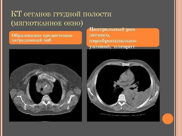 КТ ОРГАНОВ ГРУДНОЙ ПОЛОСТИ (МЯГКОТКАННОЕ ОКНО) Образование средостениязагрудинный зоб Центральный рак легкого, перибронхиальноузловой, плеврит