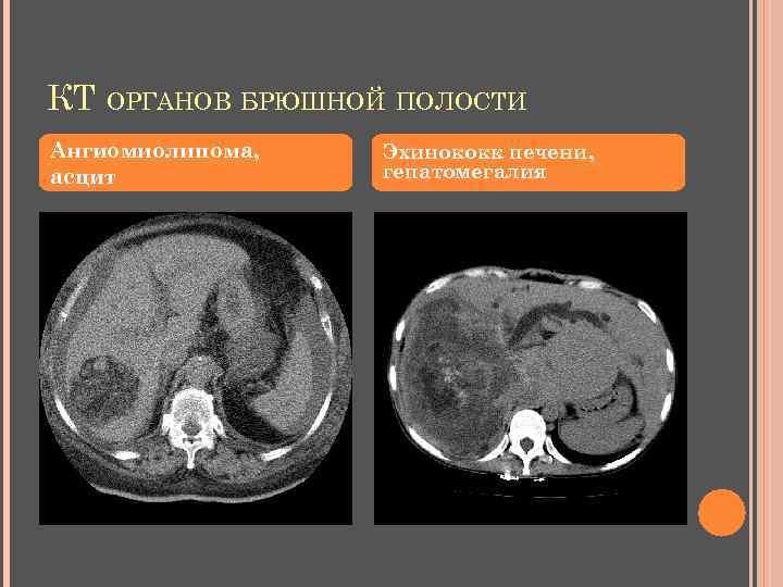 КТ ОРГАНОВ БРЮШНОЙ ПОЛОСТИ Ангиомиолипома, асцит Эхинококк печени, гепатомегалия