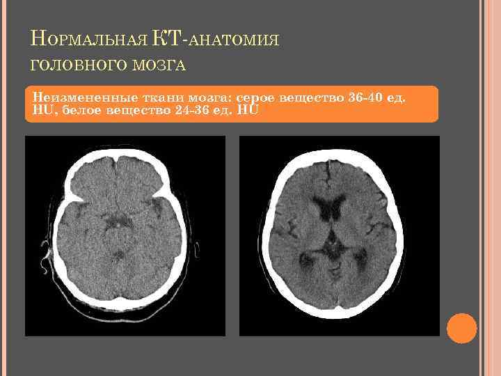НОРМАЛЬНАЯ КТ-АНАТОМИЯ ГОЛОВНОГО МОЗГА Неизмененные ткани мозга: серое вещество 36 -40 ед. НU, белое