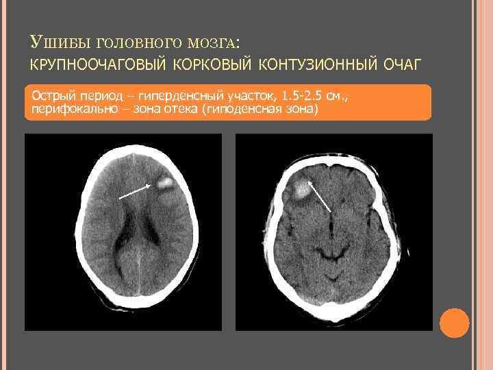 УШИБЫ ГОЛОВНОГО МОЗГА: КРУПНООЧАГОВЫЙ КОРКОВЫЙ КОНТУЗИОННЫЙ ОЧАГ Острый период – гиперденсный участок, 1. 5