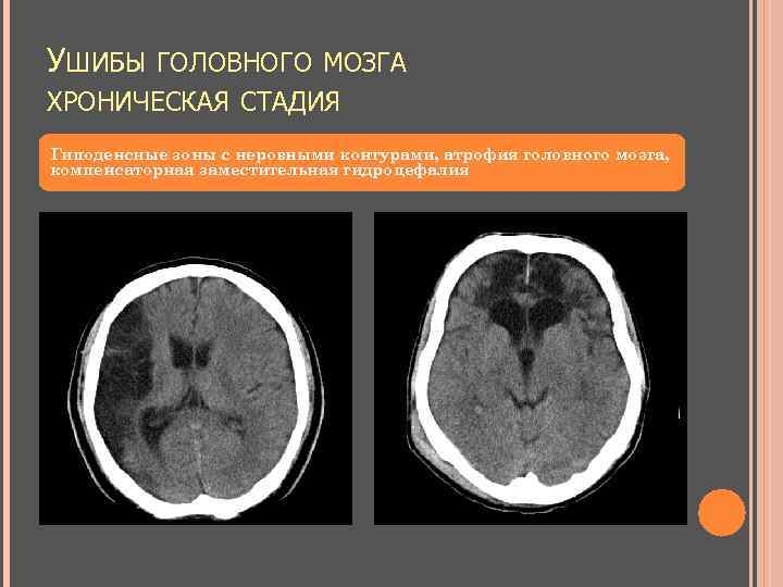 УШИБЫ ГОЛОВНОГО МОЗГА ХРОНИЧЕСКАЯ СТАДИЯ Гиподенсные зоны с неровными контурами, атрофия головного мозга, компенсаторная