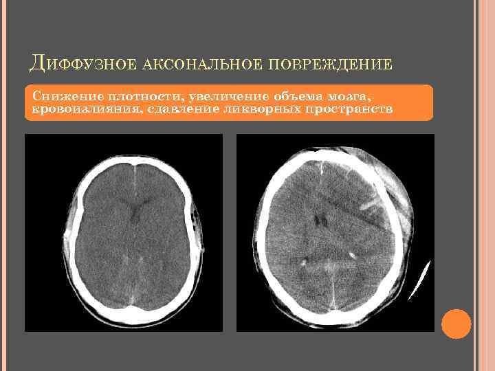 ДИФФУЗНОЕ АКСОНАЛЬНОЕ ПОВРЕЖДЕНИЕ Снижение плотности, увеличение объема мозга, кровоизлияния, сдавление ликворных пространств