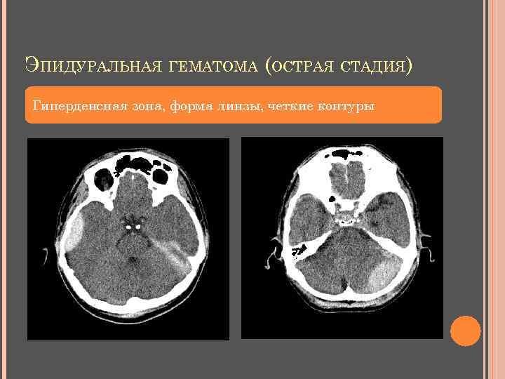 ЭПИДУРАЛЬНАЯ ГЕМАТОМА (ОСТРАЯ СТАДИЯ) Гиперденсная зона, форма линзы, четкие контуры