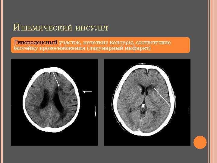 ИШЕМИЧЕСКИЙ ИНСУЛЬТ Гипоподенсный участок, нечеткие контуры, соответствие бассейну кровоснабжения (лакунарный инфаркт)