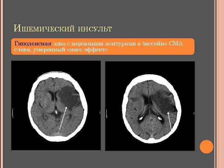 ИШЕМИЧЕСКИЙ ИНСУЛЬТ Гиподенсная зона с неровными контурами в бассейне СМА слева, умеренный «масс-эффект»