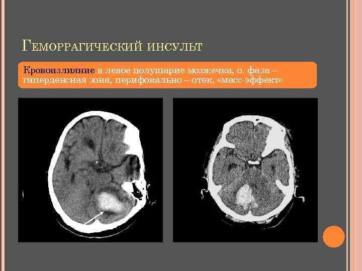 ГЕМОРРАГИЧЕСКИЙ ИНСУЛЬТ Кровоизлияние в левое полушарие мозжечка, о. фаза – гиперденсная зона, перифокально –