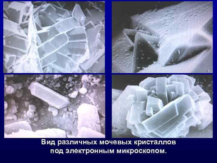 Вид различных мочевых кристаллов под электронным микроскопом.