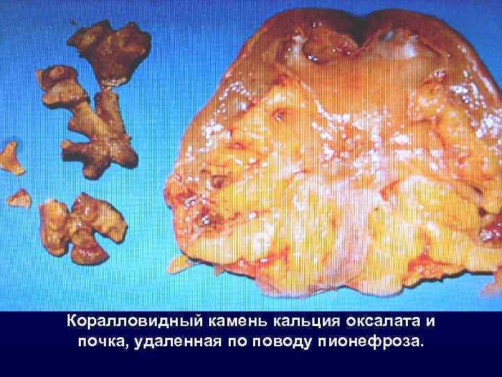 Коралловидный камень кальция оксалата и почка, удаленная по поводу пионефроза.