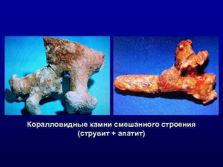 Коралловидные камни смешанного строения (струвит + апатит)