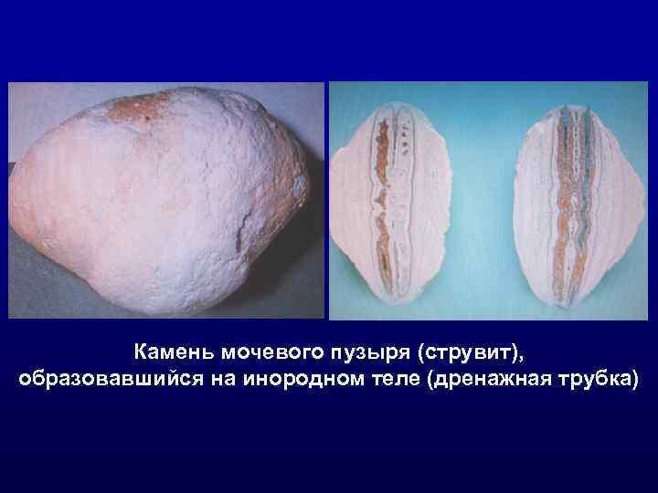 Камень мочевого пузыря (струвит), образовавшийся на инородном теле (дренажная трубка)