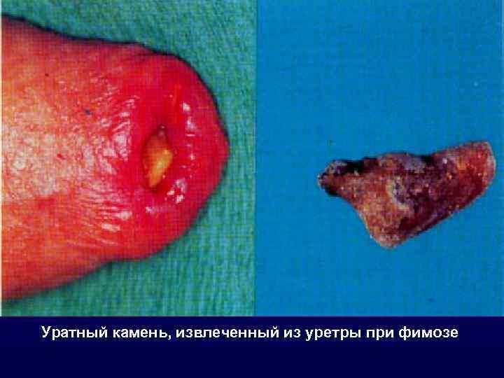Уратный камень, извлеченный из уретры при фимозе