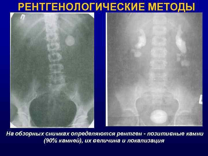 РЕНТГЕНОЛОГИЧЕСКИЕ МЕТОДЫ На обзорных снимках определяются рентген - позитивные камни (90% камней), их величина