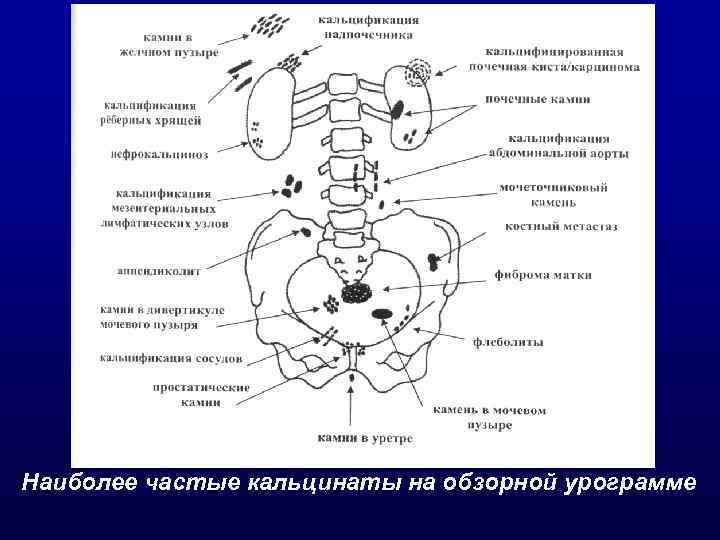 Наиболее частые кальцинаты на обзорной урограмме