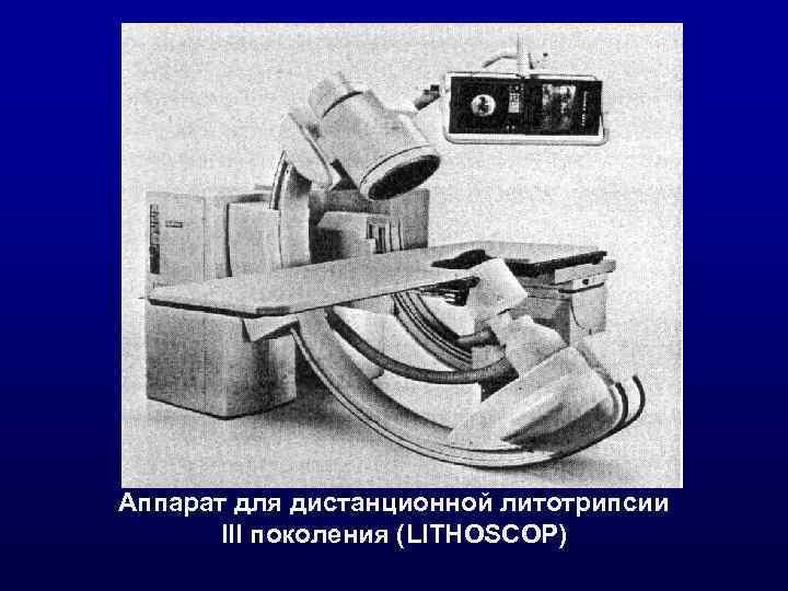 Аппарат для дистанционной литотрипсии III поколения (LITHOSCOP)