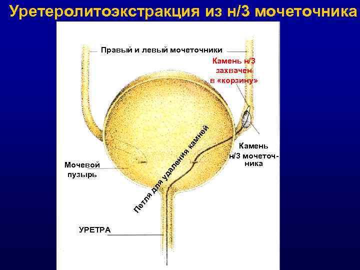 Уретеролитоэкстракция из н/3 мочеточника ен ия ка мн ей Правый и левый мочеточники Камень
