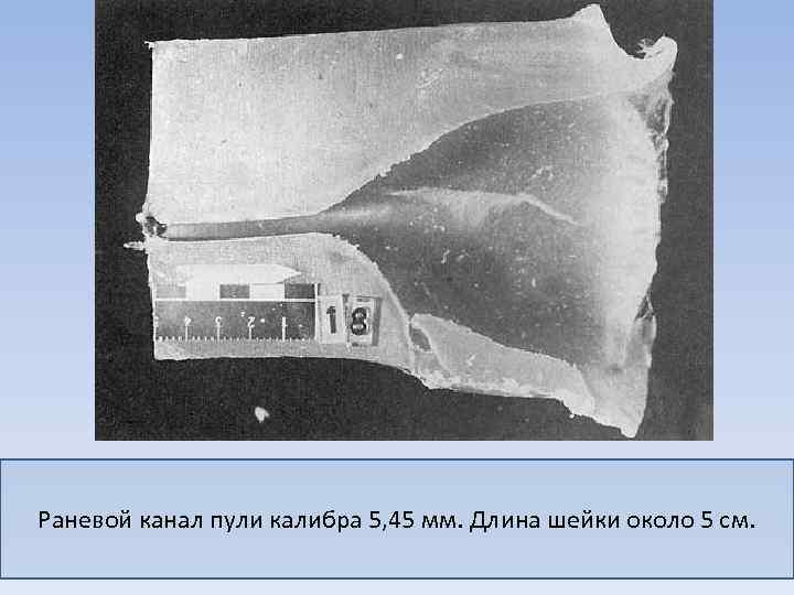 Раневой канал пули калибра 5, 45 мм. Длина шейки около 5 см.
