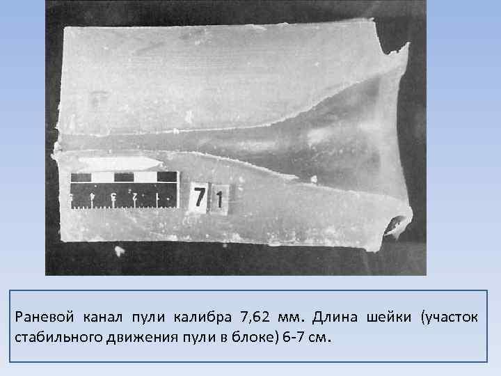 Раневой канал пули калибра 7, 62 мм. Длина шейки (участок стабильного движения пули в