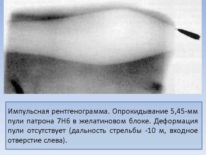 Импульсная рентгенограмма. Опрокидывание 5, 45 мм пули патрона 7 Н 6 в желатиновом блоке.