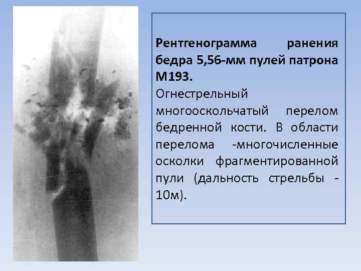 Рентгенограмма ранения бедра 5, 56 -мм пулей патрона М 193. Огнестрельный многооскольчатый перелом бедренной