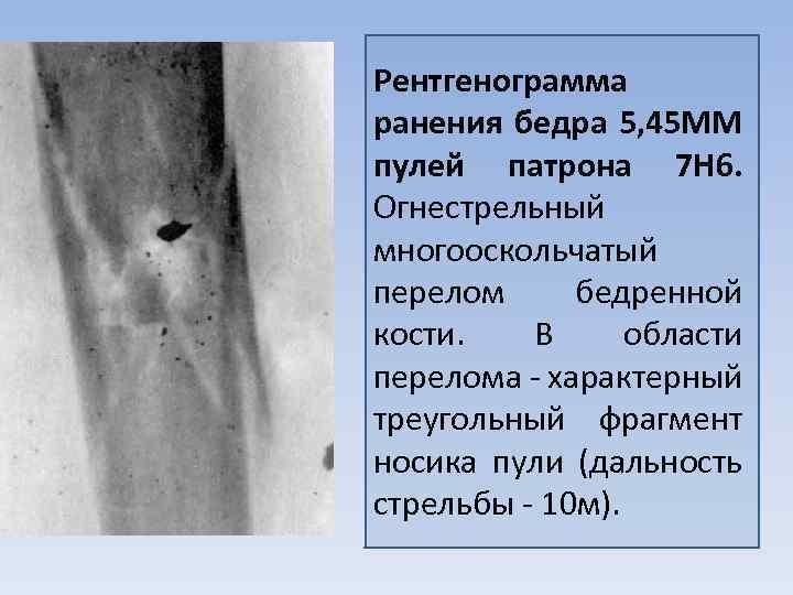 Рентгенограмма ранения бедра 5, 45 MM пулей патрона 7 Н 6. Огнестрельный многооскольчатый перелом