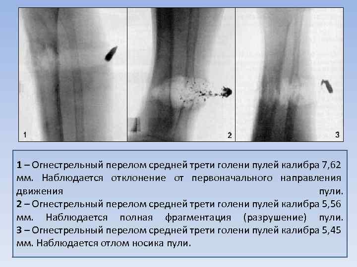 1 – Огнестрельный перелом средней трети голени пулей калибра 7, 62 мм. Наблюдается отклонение