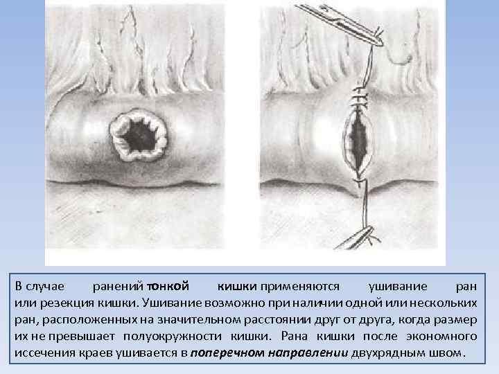 В случае ранений тонкой кишки применяются ушивание ран кишки или резекция кишки. Ушивание возможно