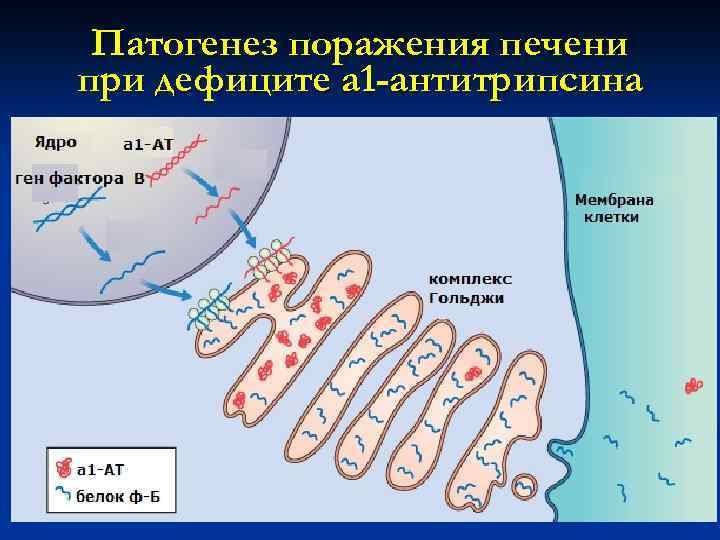 Патогенез поражения печени при дефиците а 1 -антитрипсина