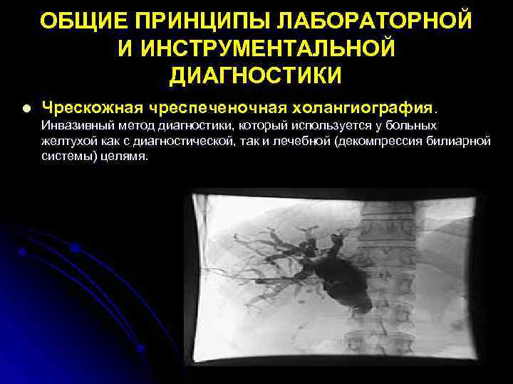 ОБЩИЕ ПРИНЦИПЫ ЛАБОРАТОРНОЙ И ИНСТРУМЕНТАЛЬНОЙ ДИАГНОСТИКИ l Чрескожная чреспеченочная холангиография. Инвазивный метод диагностики, который