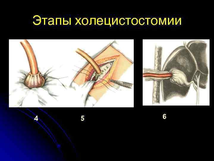 Этапы холецистостомии 4 5 6