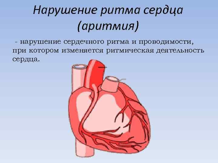 Нарушение ритма сердца (аритмия) - нарушение сердечного ритма и проводимости, при котором изменяется ритмическая