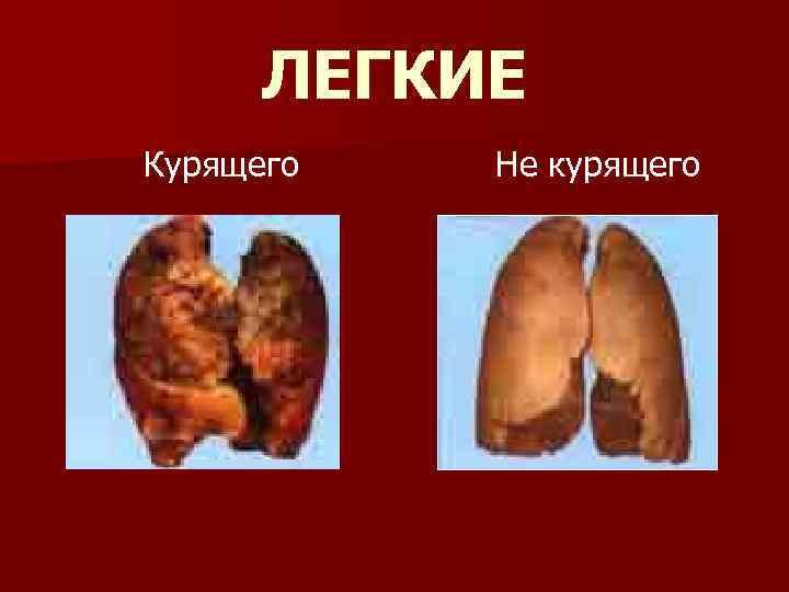 ЛЕГКИЕ Курящего Не курящего