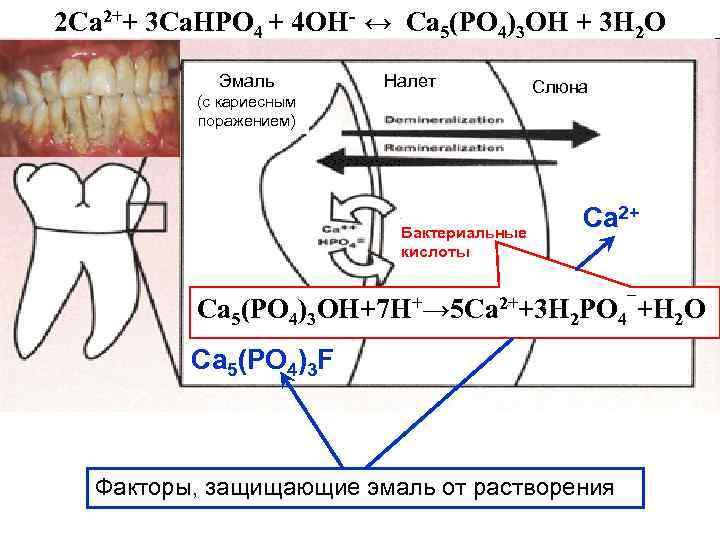 2 Са 2++ 3 Са. НРО 4 + 4 ОН- ↔ Ca 5(PO 4)3