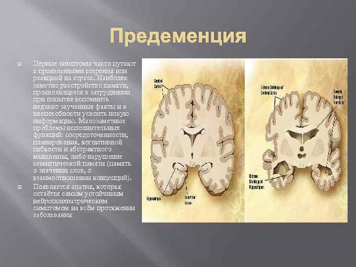 Предеменция Первые симптомы часто путают с проявлениями старения или реакцией на стресс. Наиболее заметно