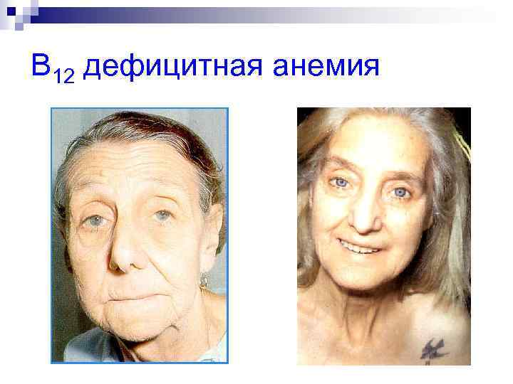 B 12 дефицитная анемия
